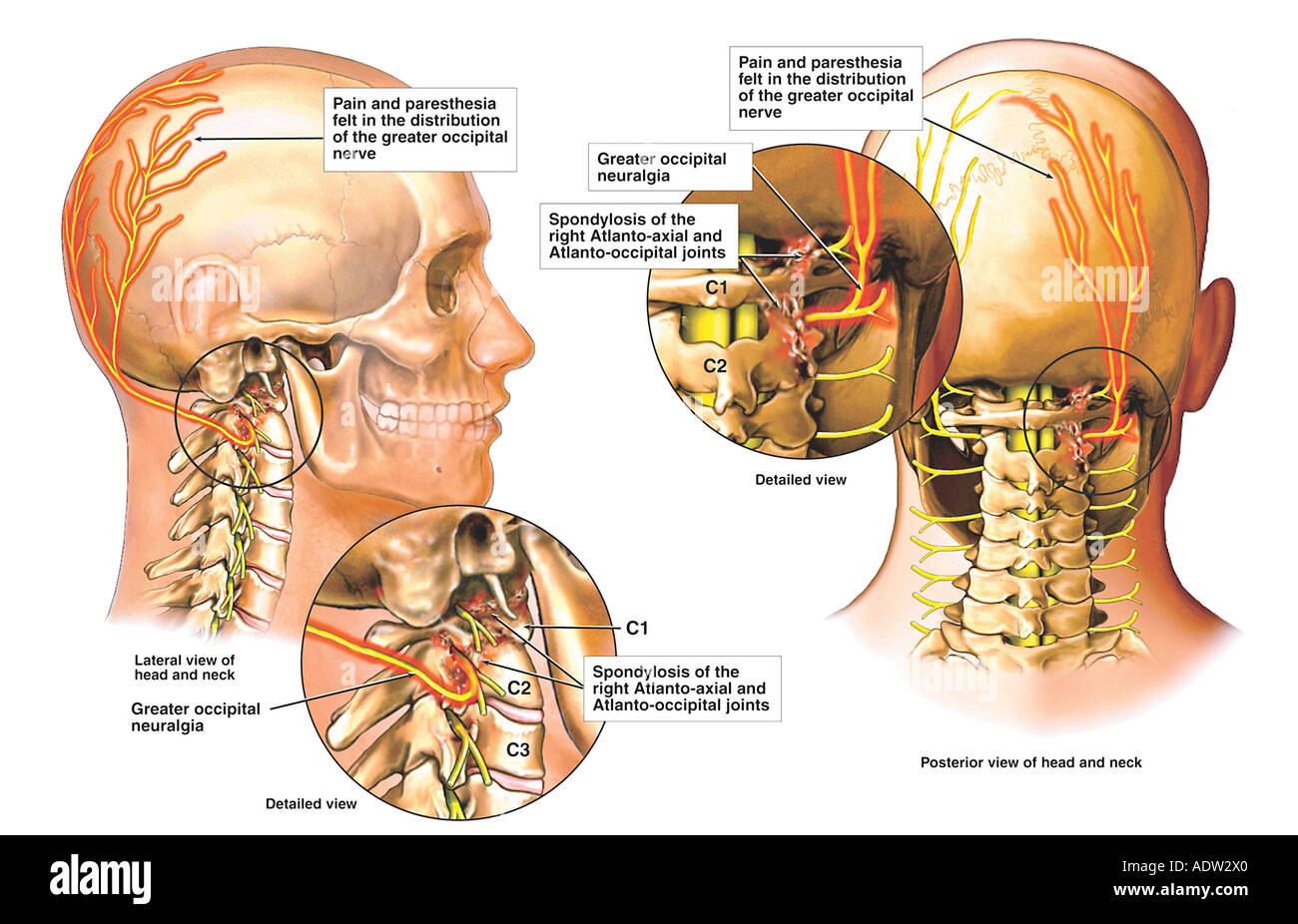 Post-accident Facet Syndrome with Occipital Neuralgia Stock Photo ...
