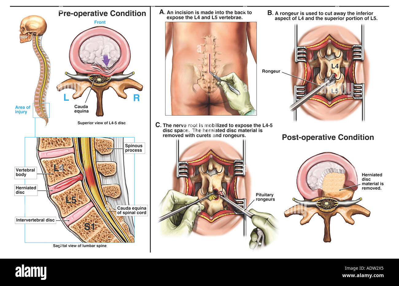 Spine Surgery - L4-5 Disc Herniation with Discectomy (Diskectomy ...