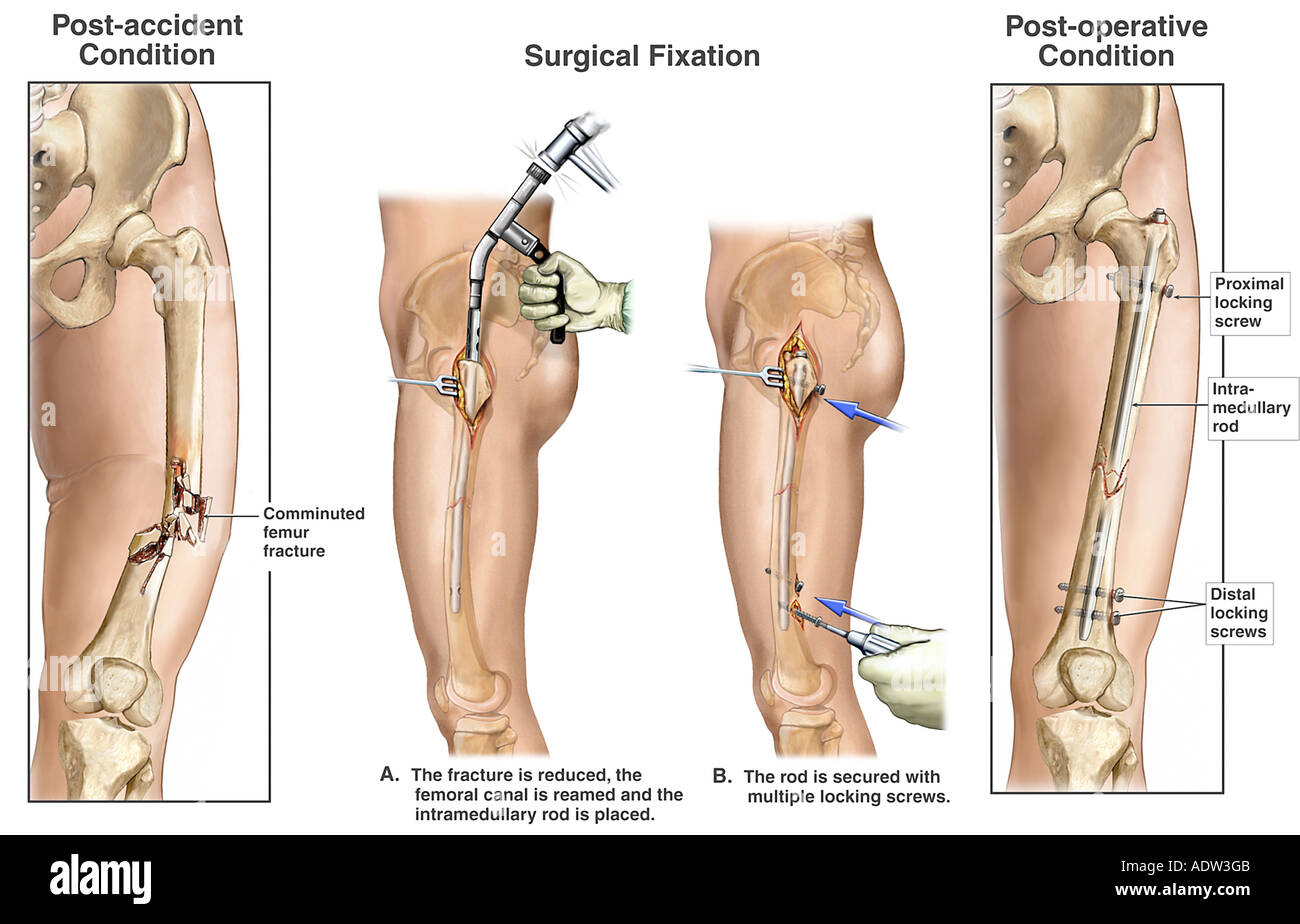 Femur Fracture with Surgical Fixation Stock Photo: 7711562 - Alamy