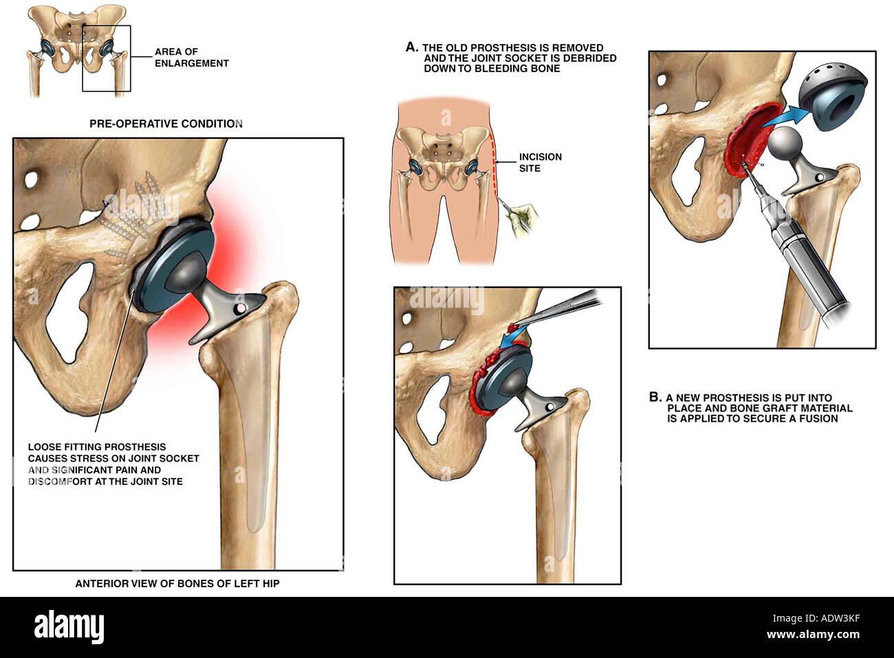 Revision of Left Hip Prosthesis (artificial hip joint) - Stock Image