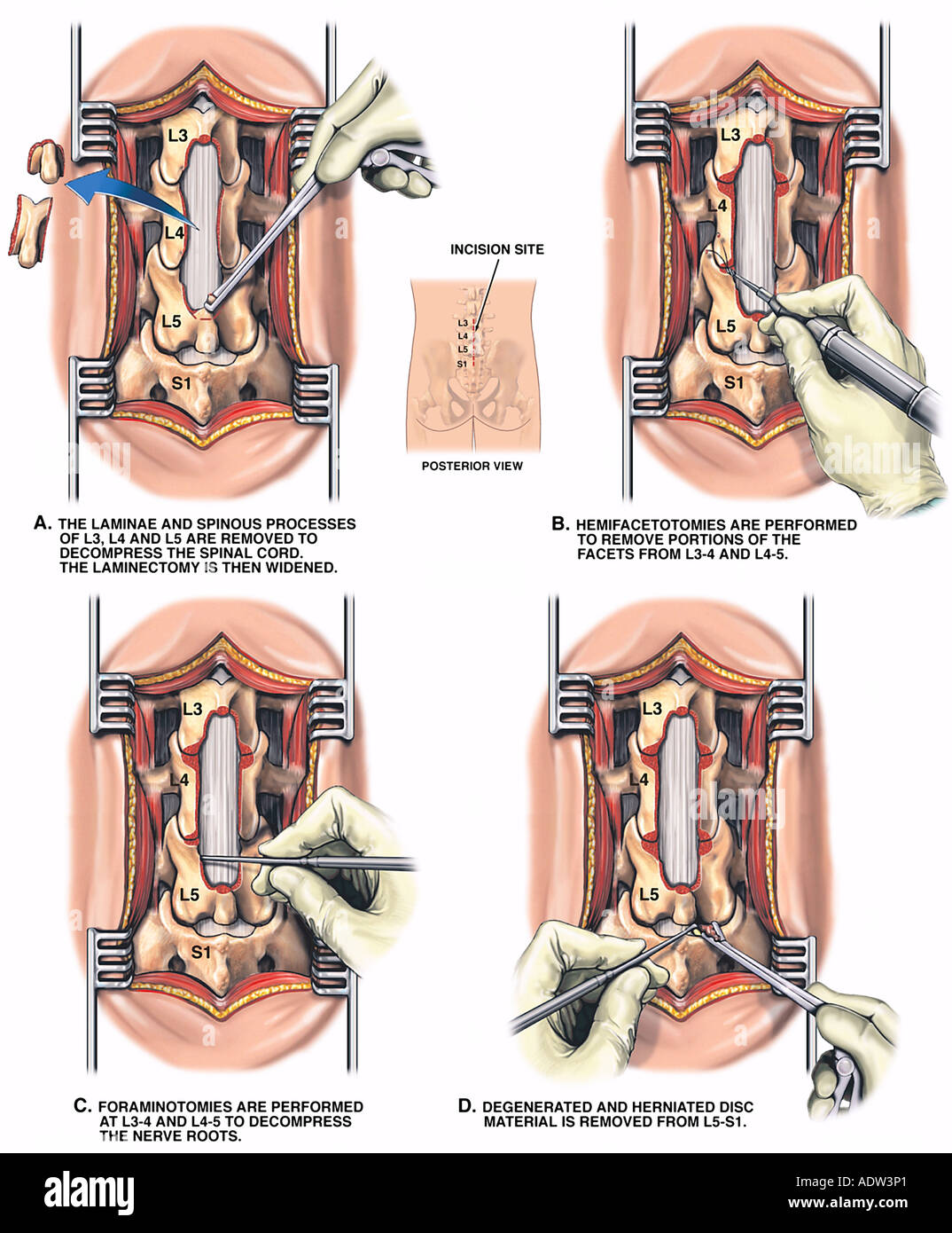 Lumbar Laminectomy Stock Photos Lumbar Laminectomy Stock Images