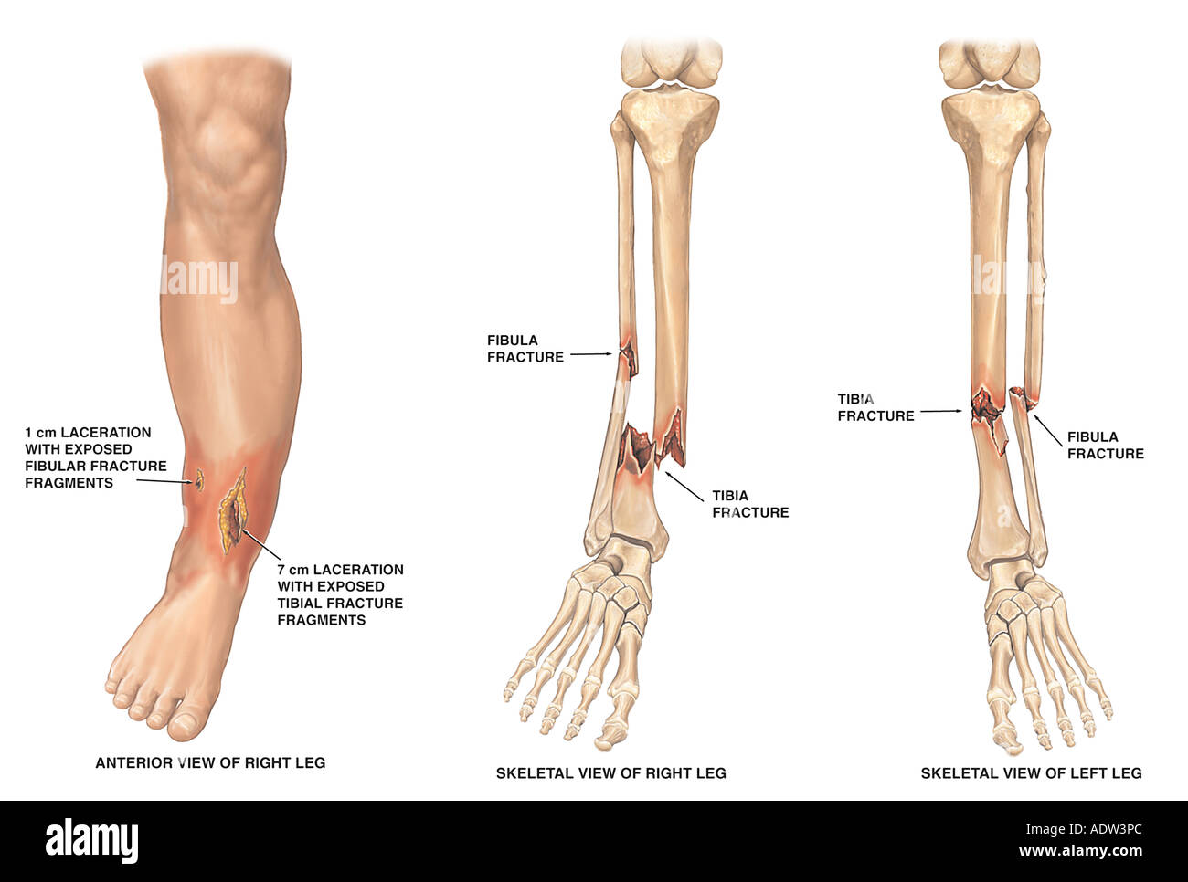 Bilateral Lower Leg Fractures - Stock Image