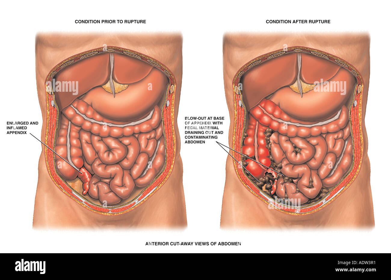 Vermiform Appendix Stock Photos & Vermiform Appendix Stock Images ...