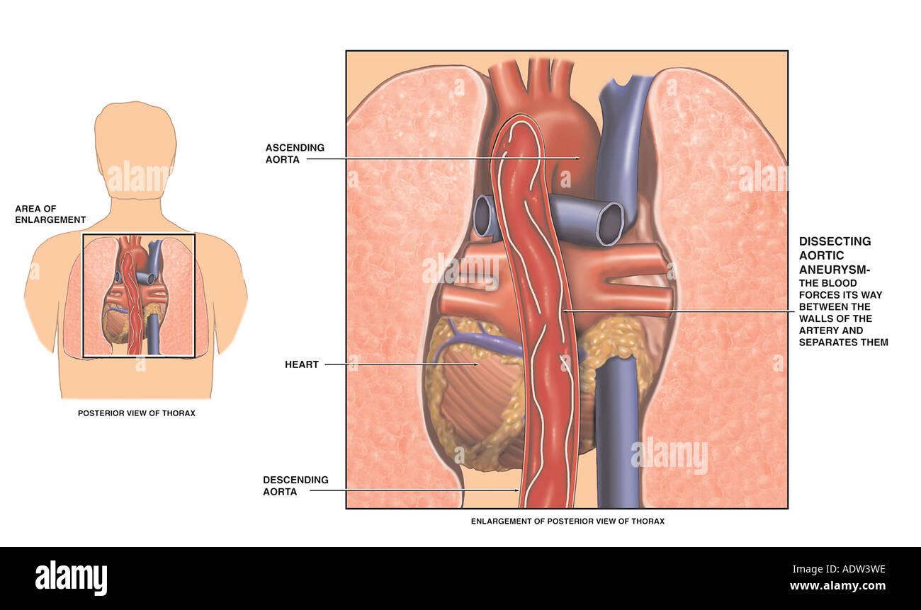 Dissecting Thoracic Aortic Aneurysm Stock Photo: 7711709 - Alamy