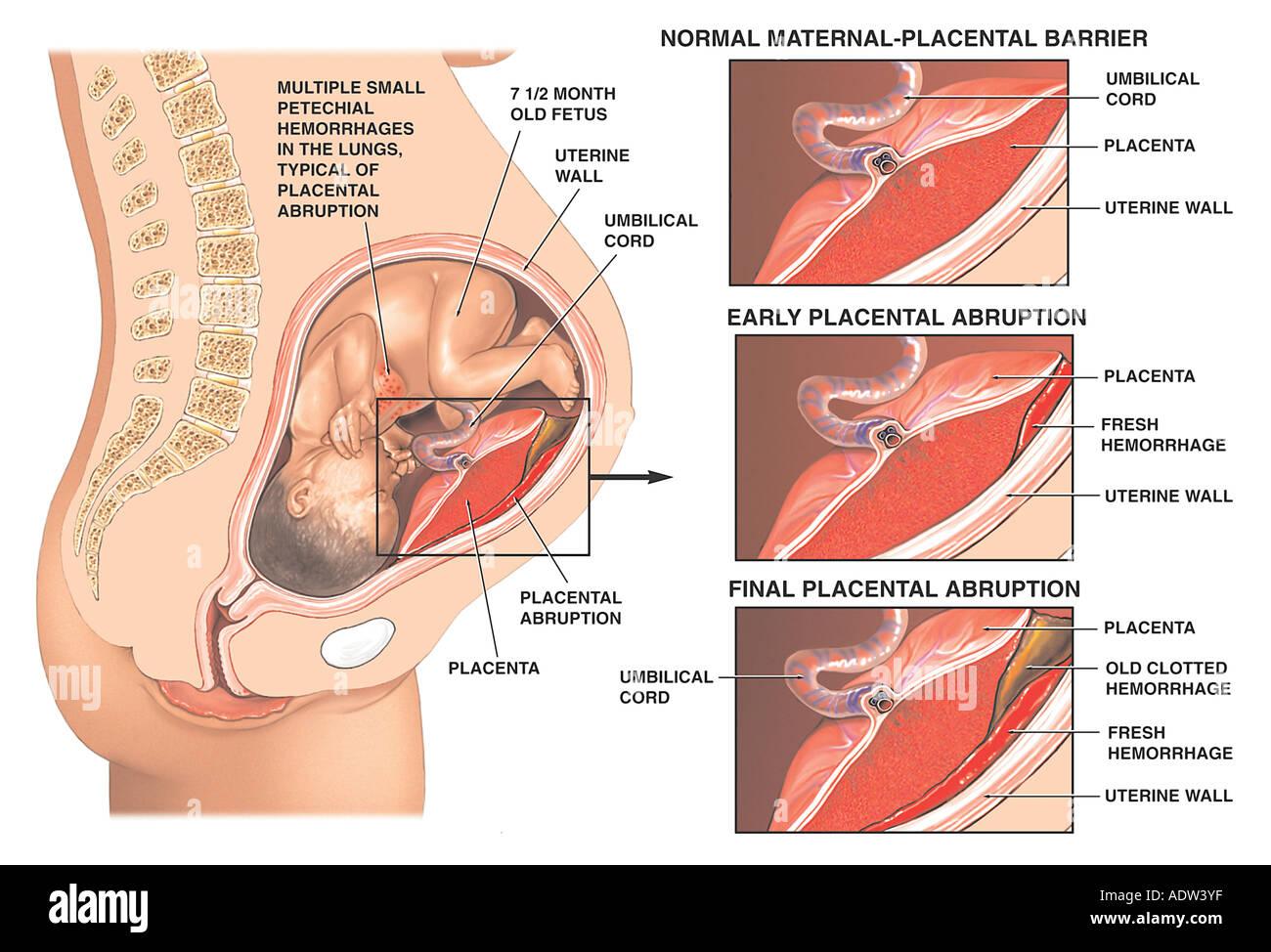 Post-traumatic Placental Abruption - Stock Image