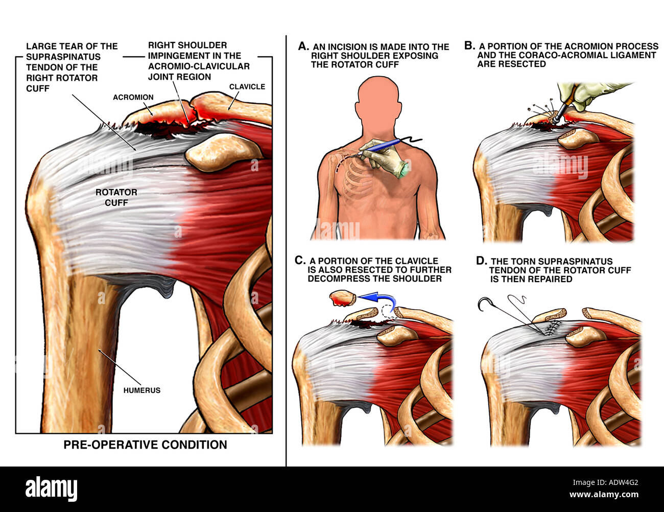 Right Shoulder Impingement and Rotator Cuff Tear with Surgical ...