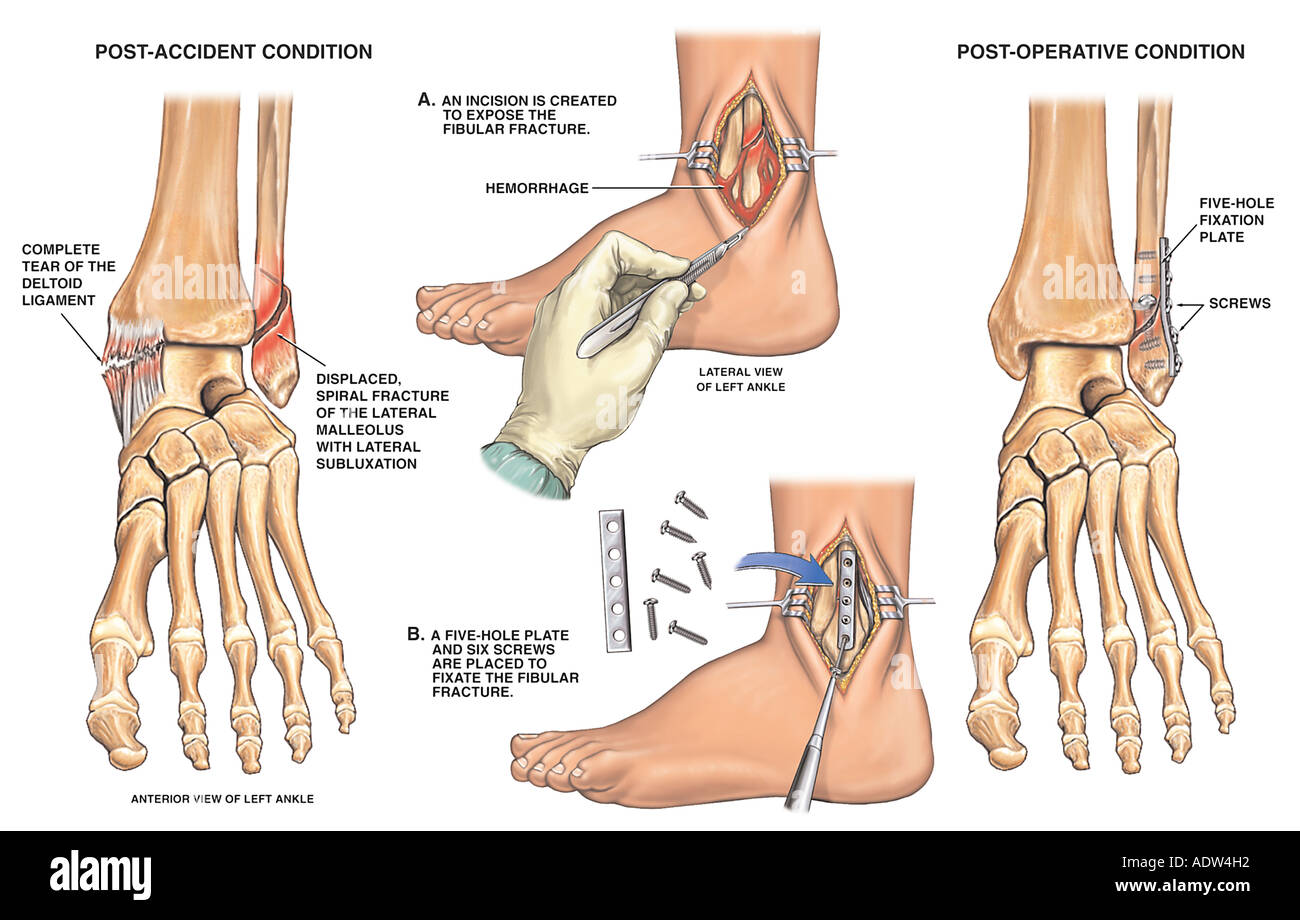 Post-accident Ankle Fracture with Open Reduction and Internal Fixation - Stock Image