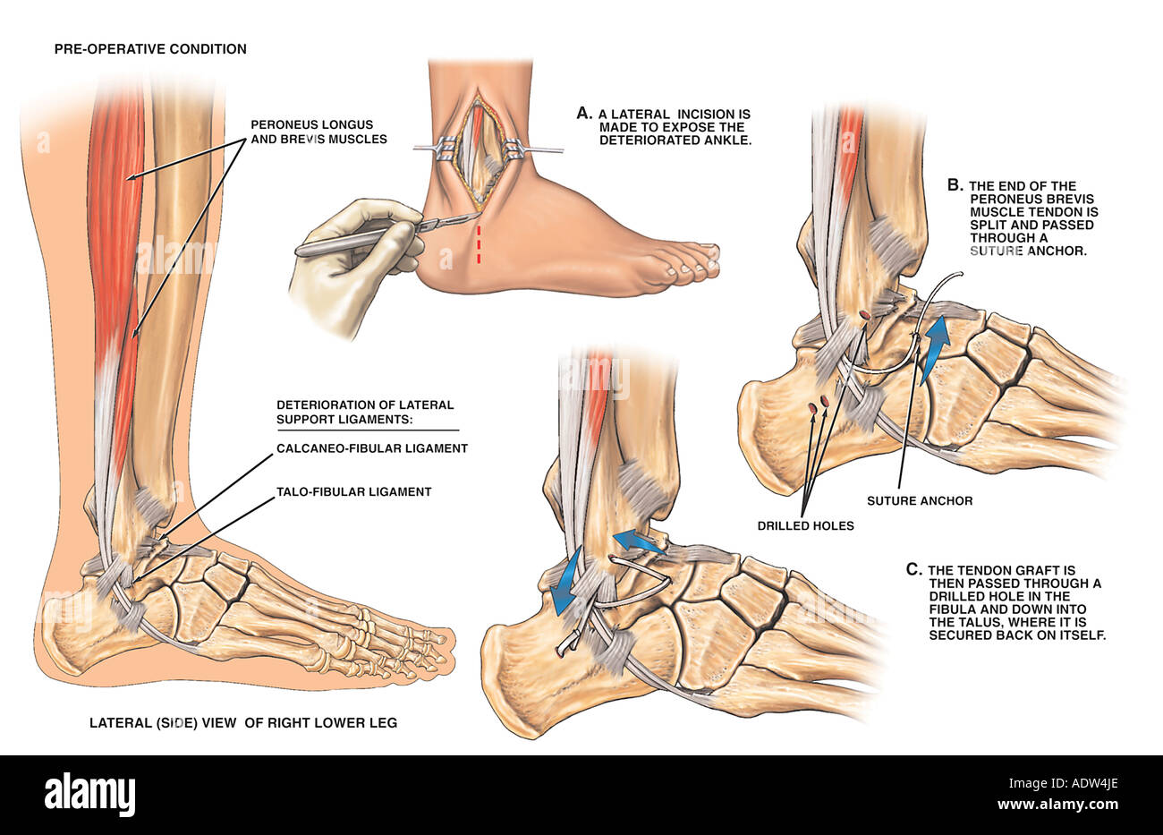 Lateral Ankle Ligament Instability with Surgical Reconstruction - Stock Image