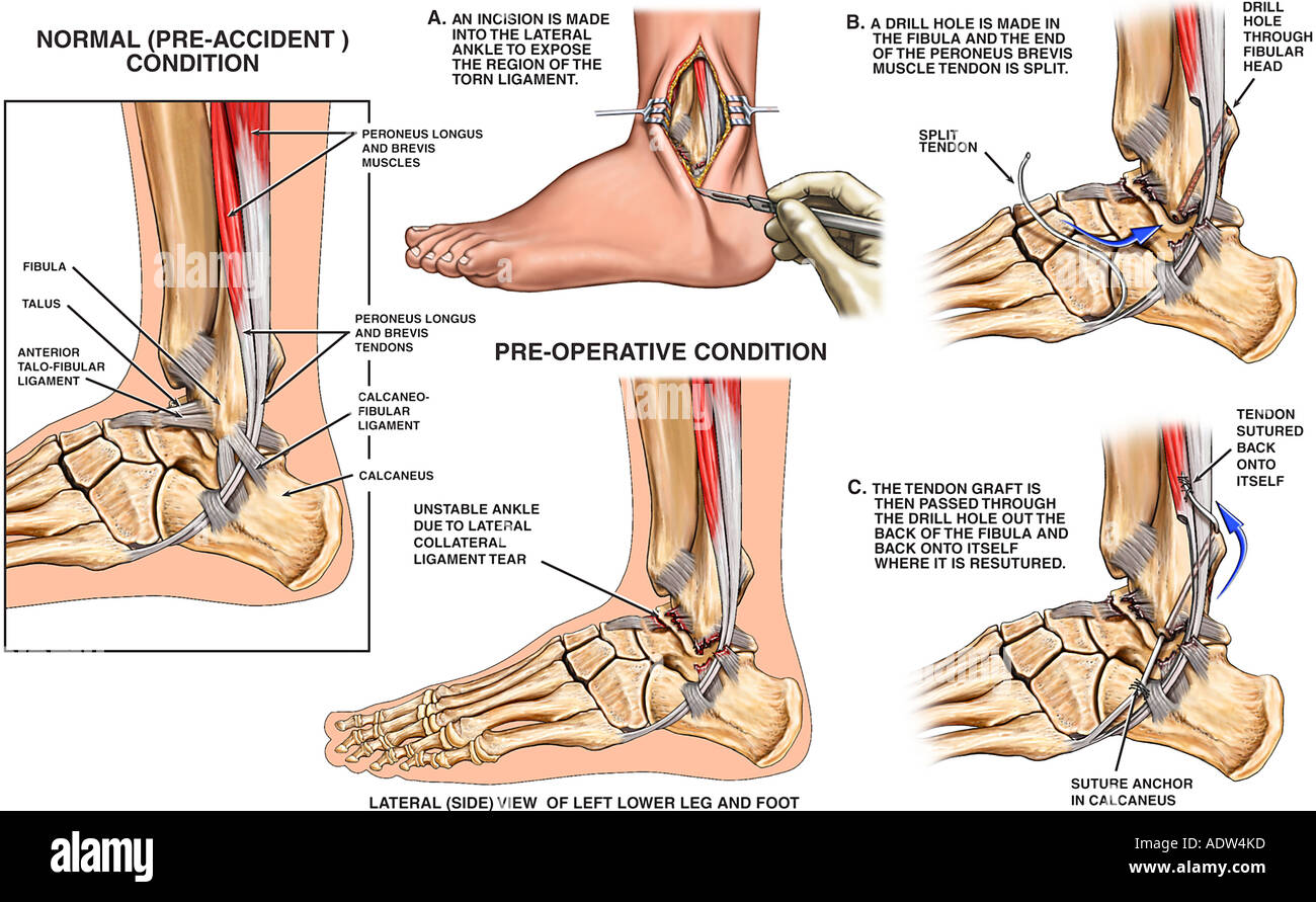 Medial Collateral Ligament Stock Photos & Medial Collateral Ligament ...