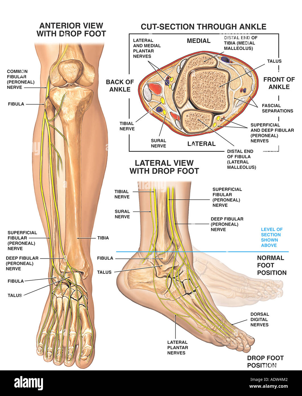 Anatomy of the Foot and Ankle with Foot Drop Deformity Stock Photo ...