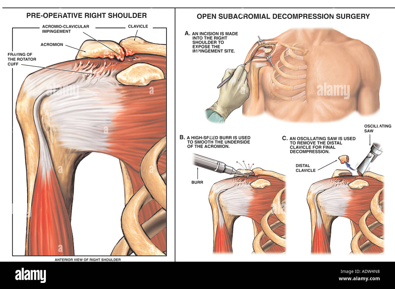 Right Shoulder Impingement Syndrome with Decompression Surgery Stock ...