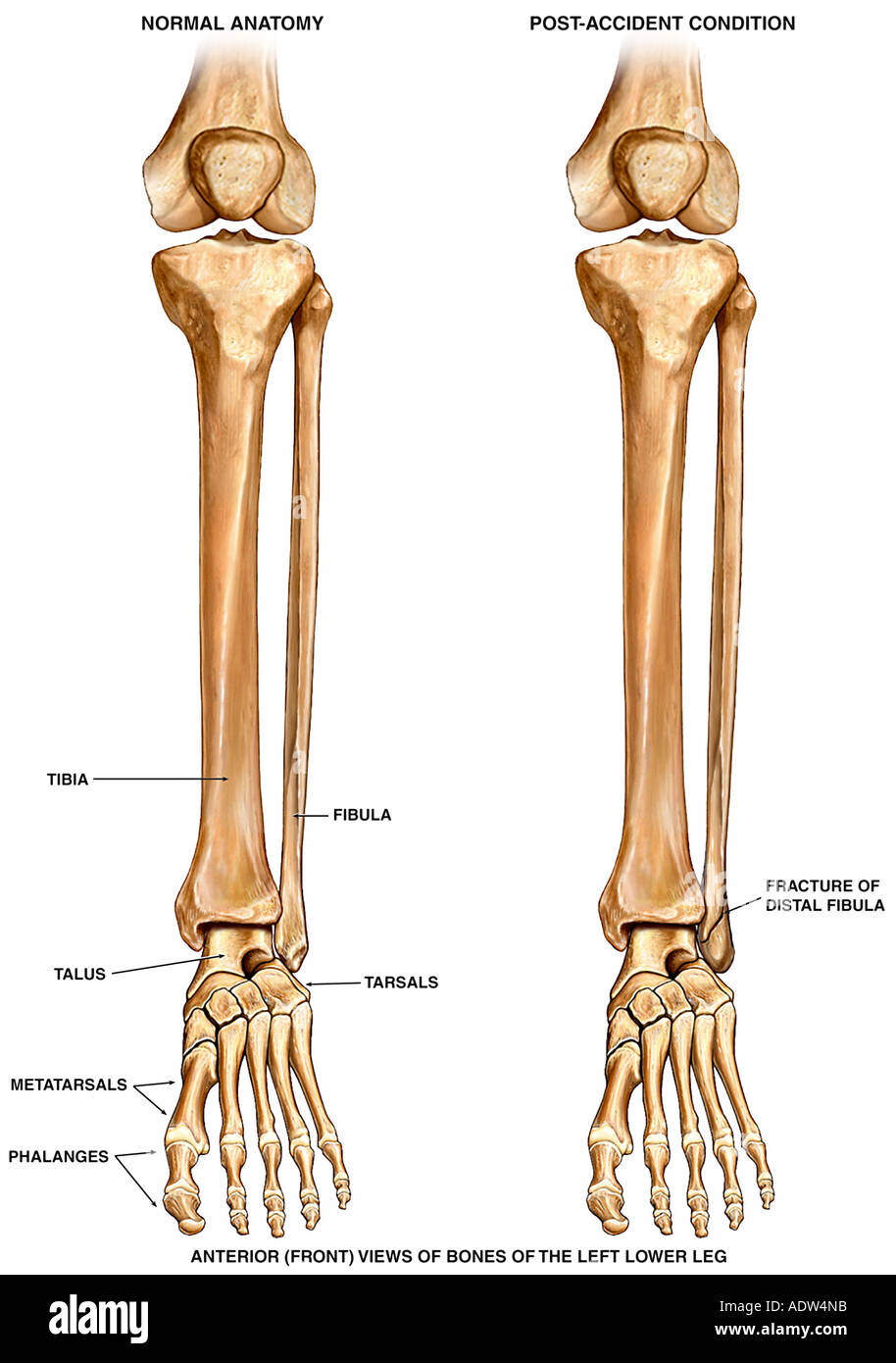 Medial Malleolus Stock Photos & Medial Malleolus Stock Images - Alamy