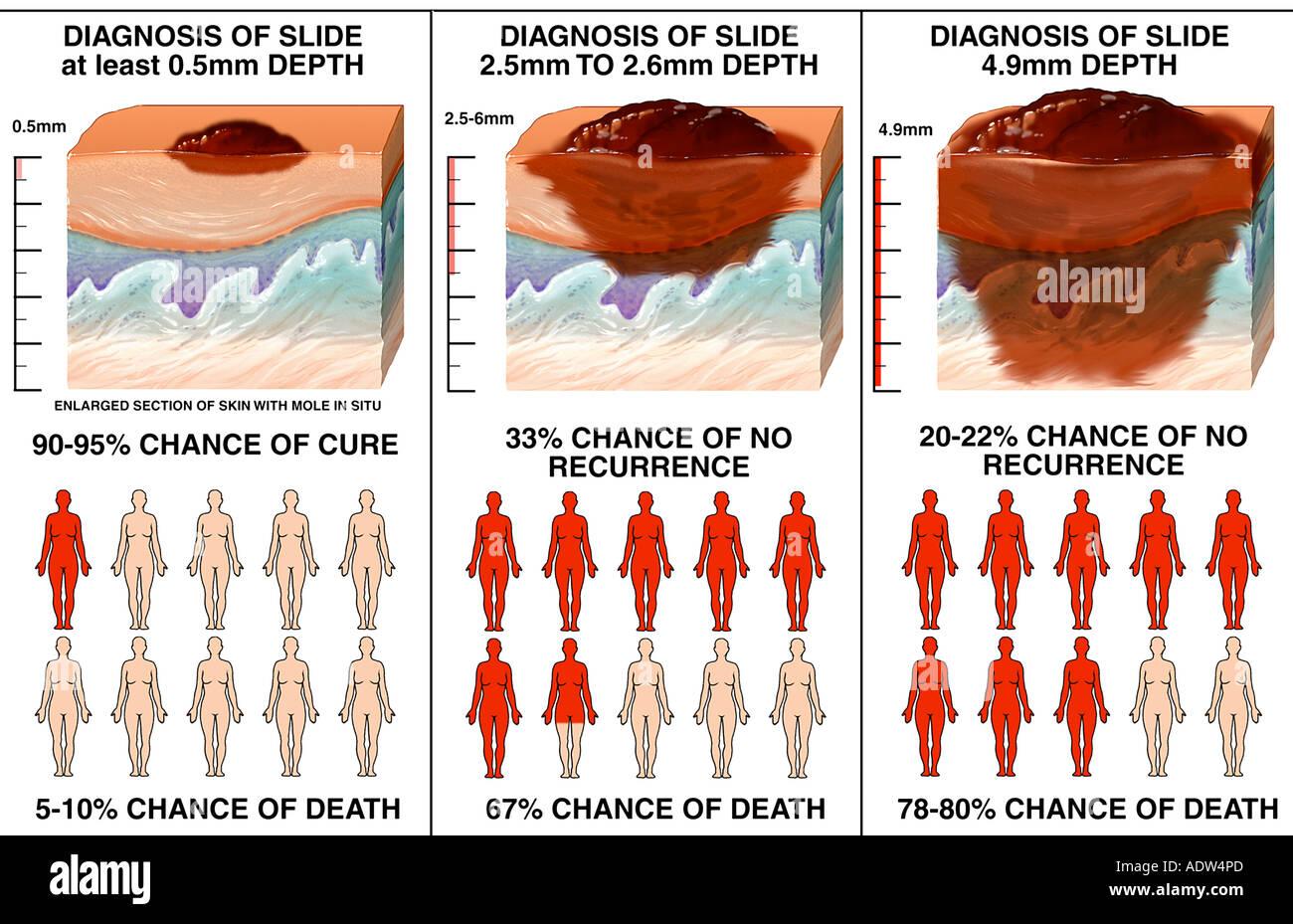 Skin Cancer Metastatic Melanoma - Stock Image
