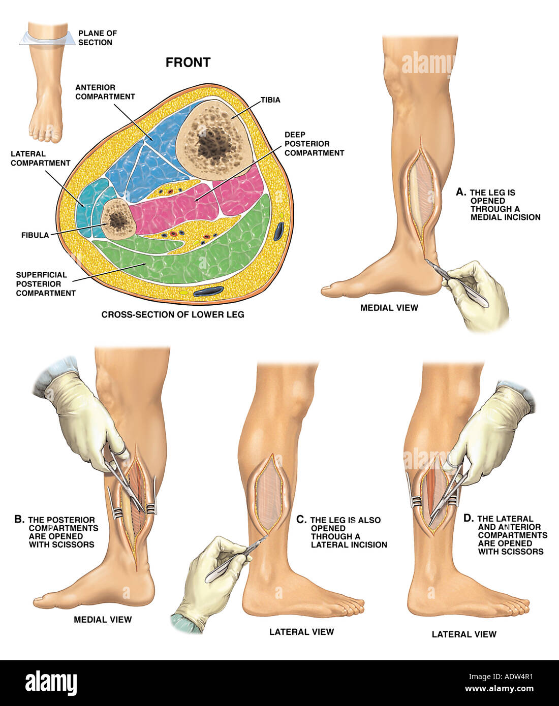 Compartment Syndrome with Four Compartment Fasciotomy Procedure ...