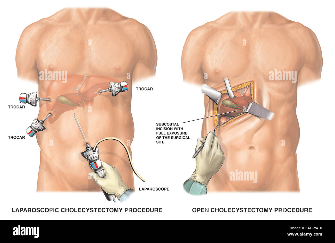 Gallbladder Surgery Laparoscopic Cholecystectomy vs Open Cholecystectomy Stock Photo