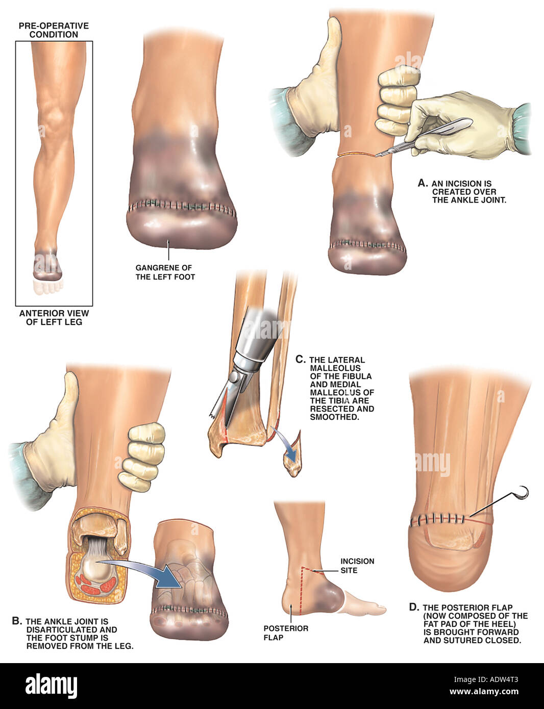 Post operative Gangrene of the Left Foot with Amputation Surgery - Stock Image