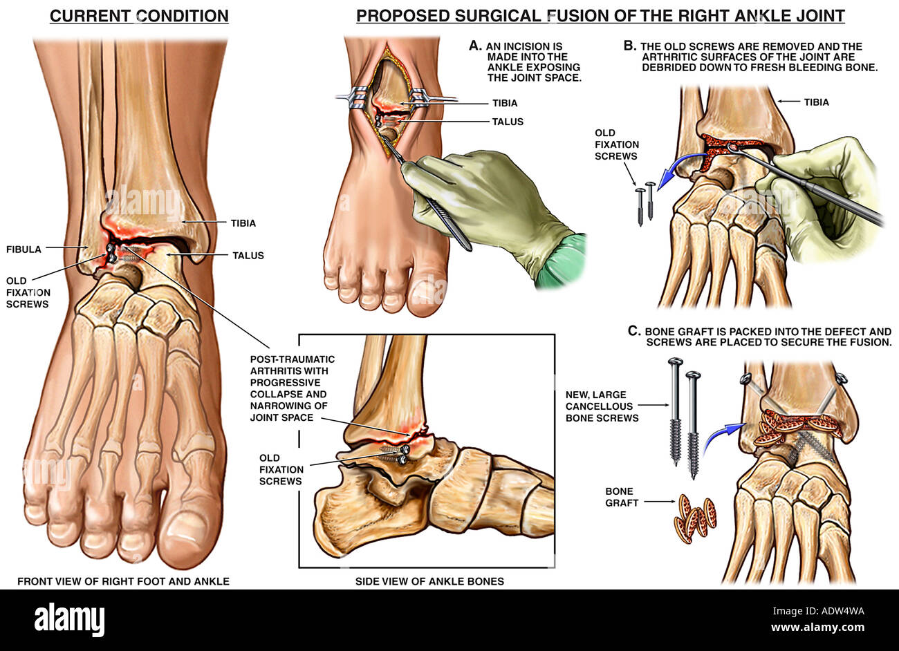Ankle Joint Injury with Fusion Surgery - Stock Image