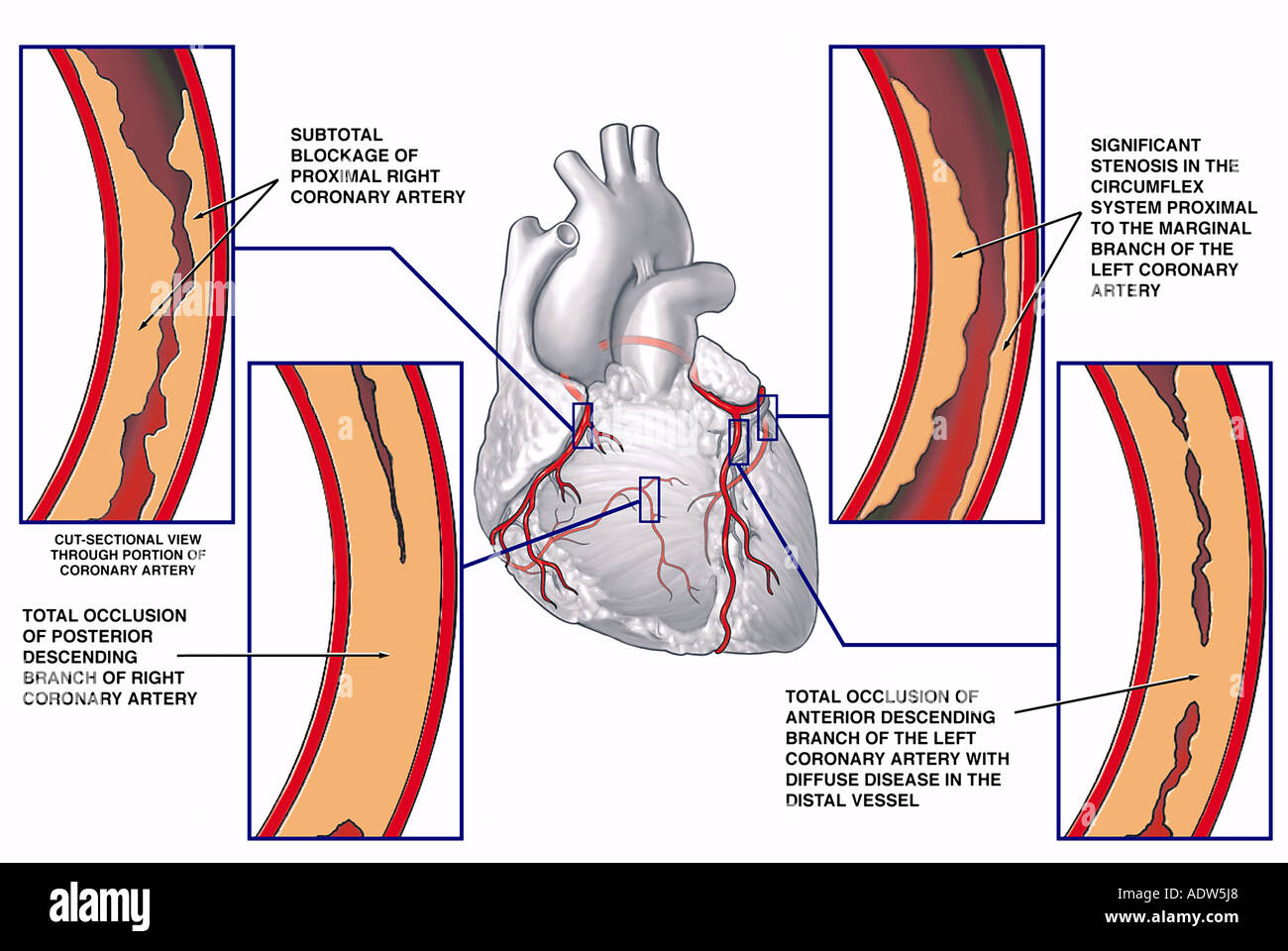 Coronary Artery Disease With Blockage Sites Stock Photo 7711975 Alamy