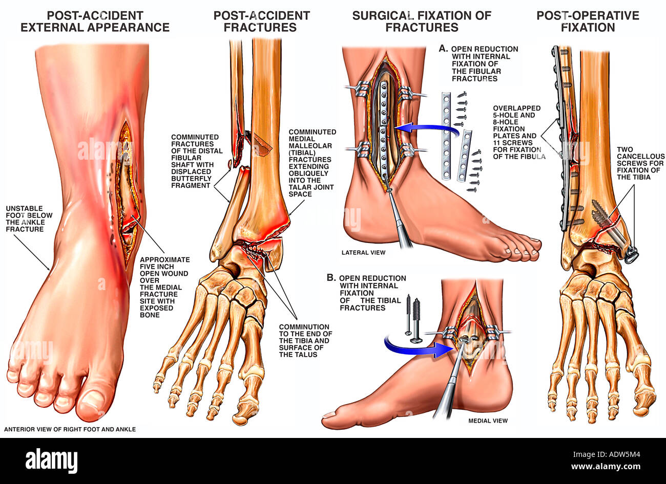 Open Fracture Dislocation of the Right Ankle - Stock Image