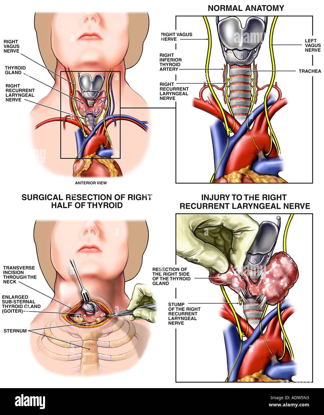 Thyroidectomy with Iatrogenic Laryngeal Nerve Resection Surgery ...