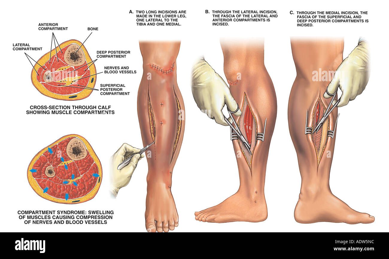 Compartment Syndrome Of Left Leg With Surgical Fasciotomy Stock