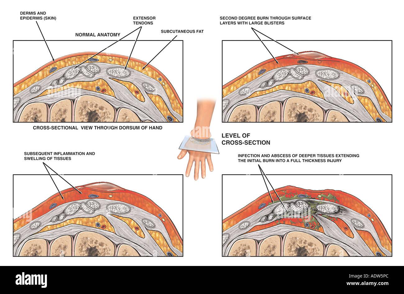Progression of Left Hand Burn - Stock Image