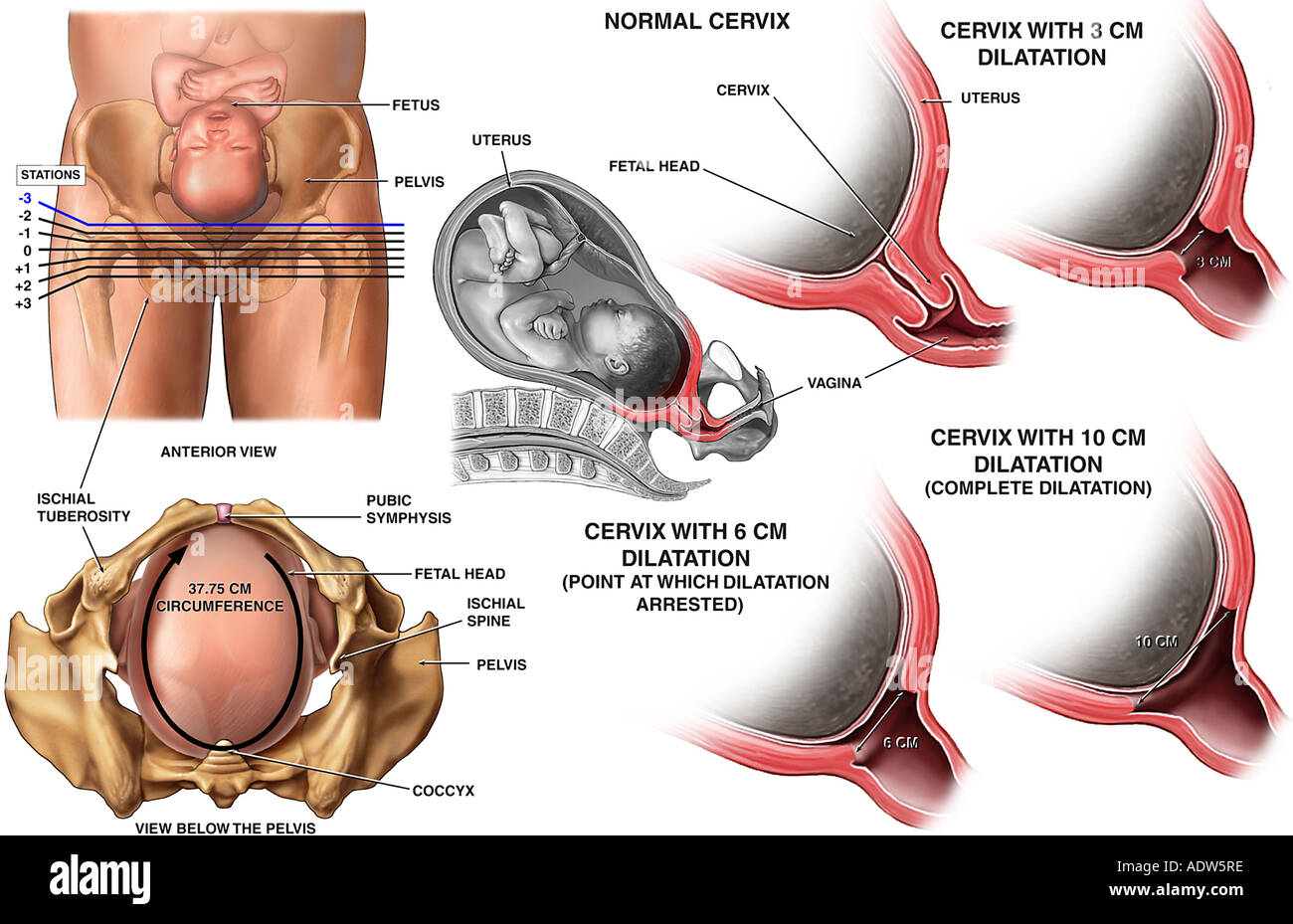 Cephalopelvic Disproportion and Arrest of Cervical Dilatation in the Active Phase - Stock Image
