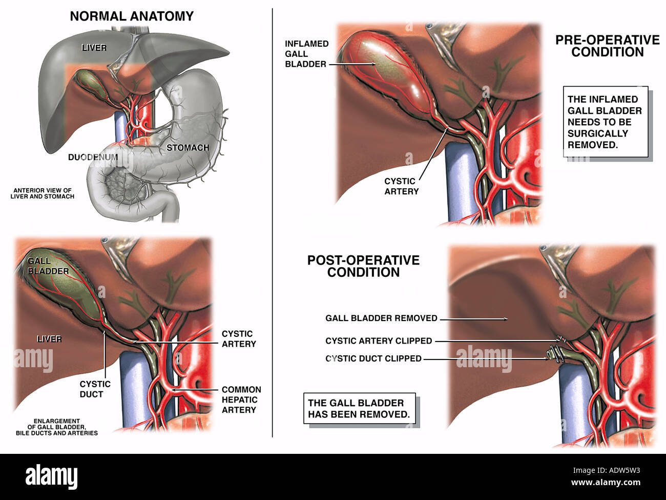 Cholecystectomy Gallbladder Removal Surgery Stock Photo: 7712082 - Alamy