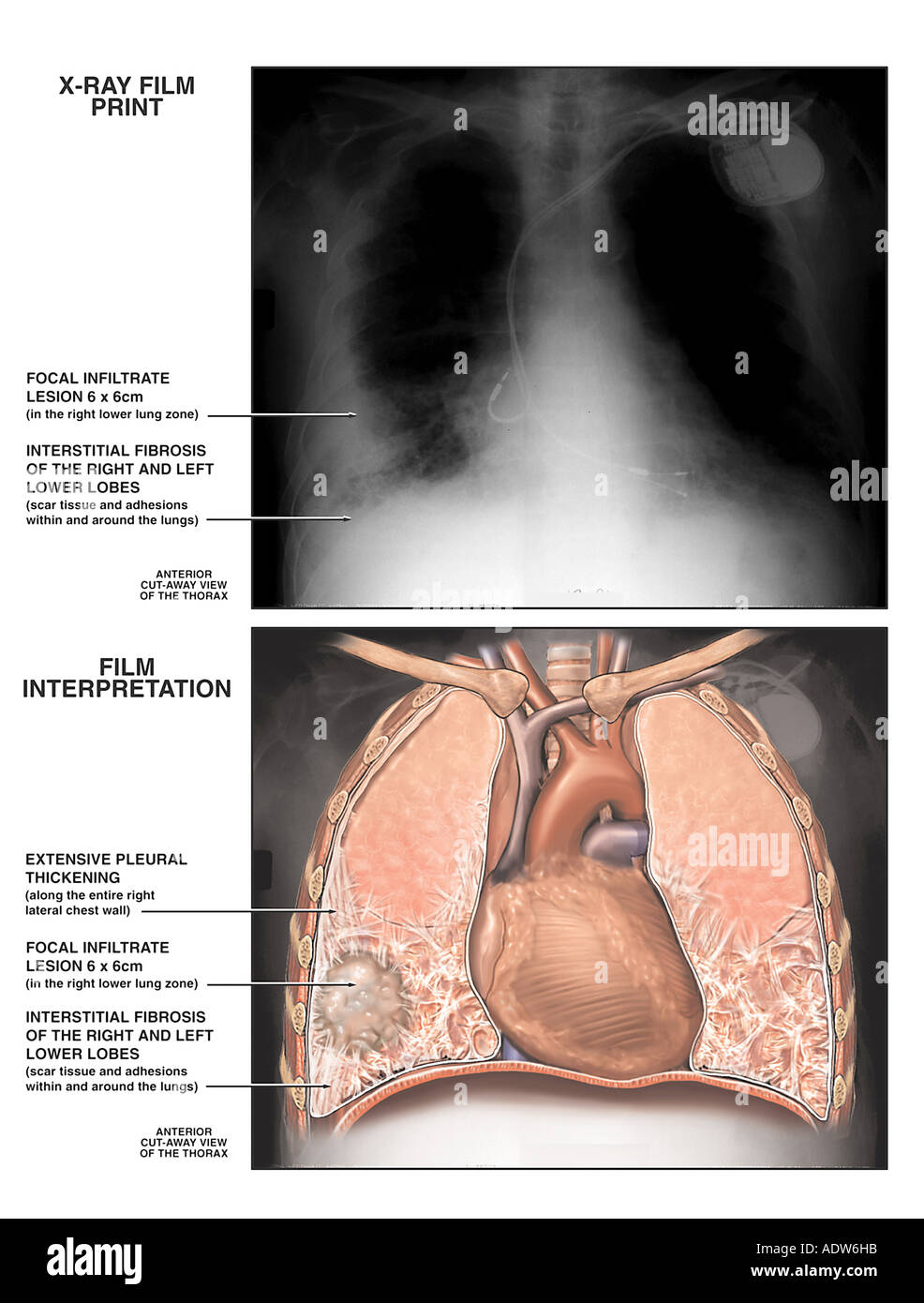 Asbestosis of the Lung - Stock Image