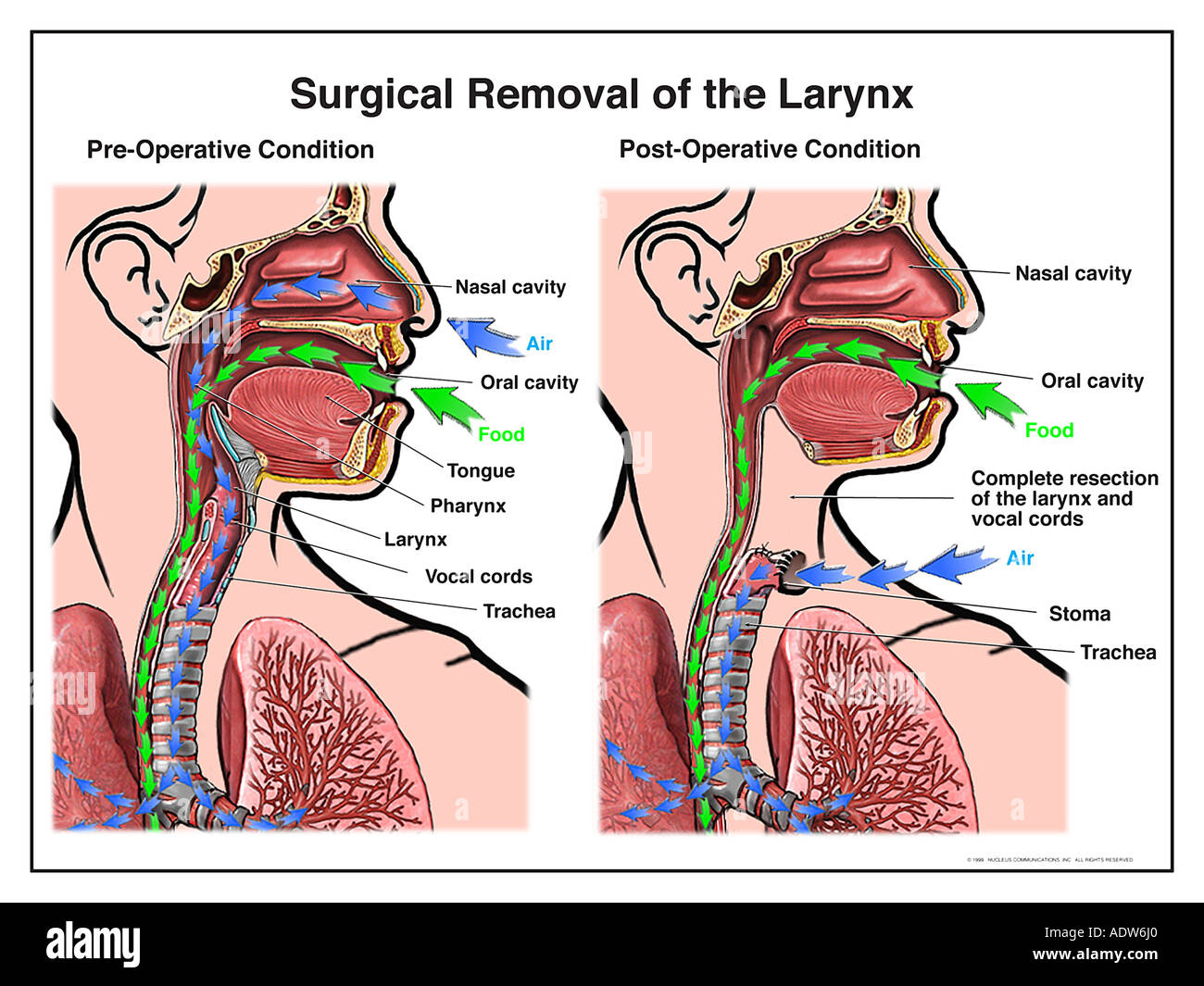 Surgical Removal Of The Larynx Stock Photo 7712159 Alamy