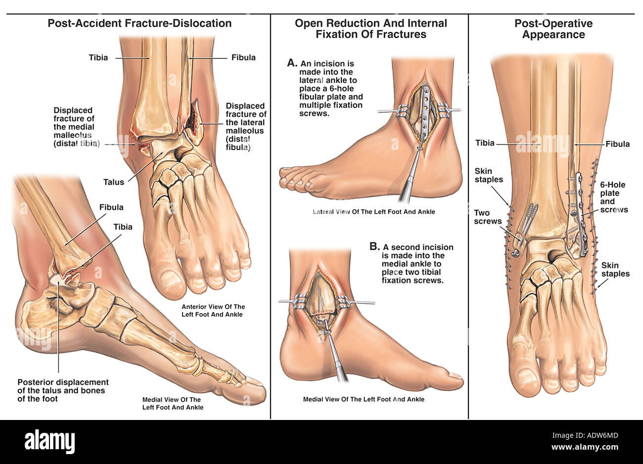 Bimalleolar Left Ankle Fracture Dislocation with Surgical Fixation - Stock Image