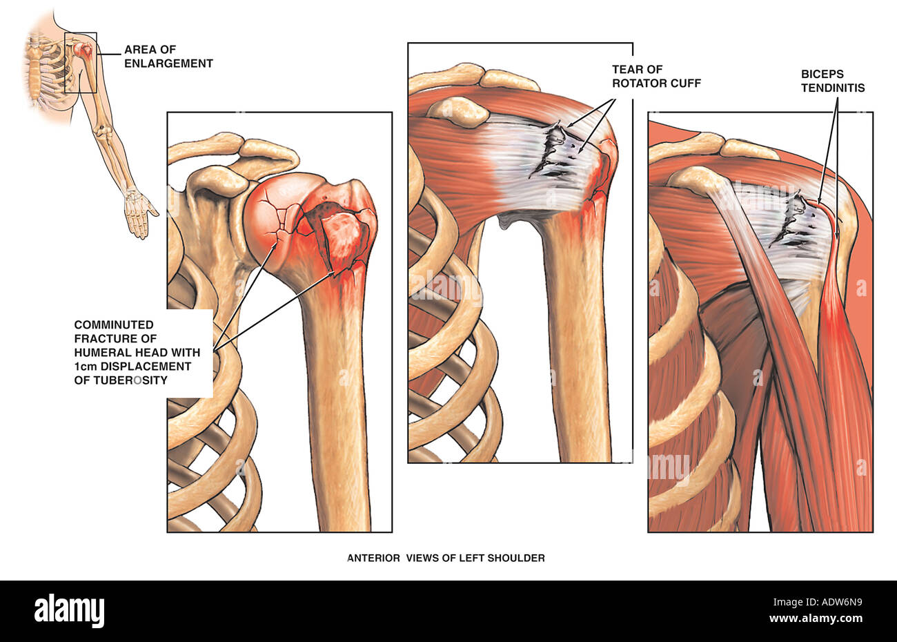 Glenoid Labrum Stock Photos Glenoid Labrum Stock Images Alamy