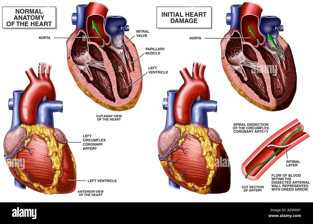 Coronary Artery Disease Arterial Dissection Stock Photo: 7712240 - Alamy
