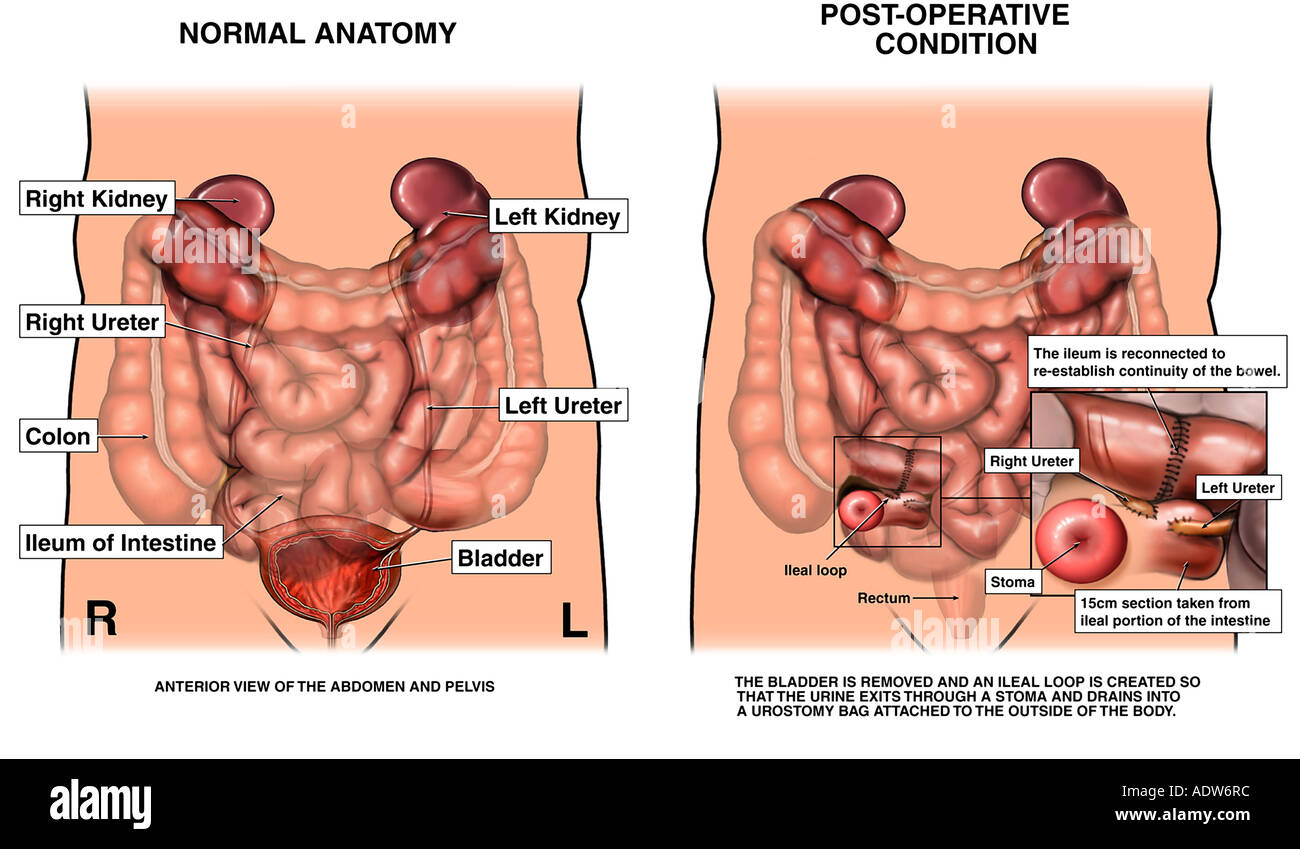 Diagram Of Kidneys Bladder And Colon Auto Wiring Diagram Today