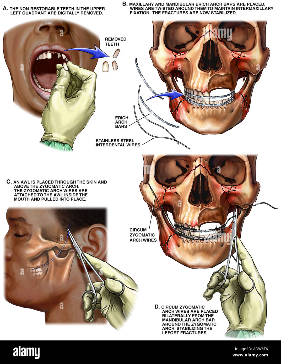 Surgical Fixation of Maxillary and Mandibular Fractures Stock Photo ...