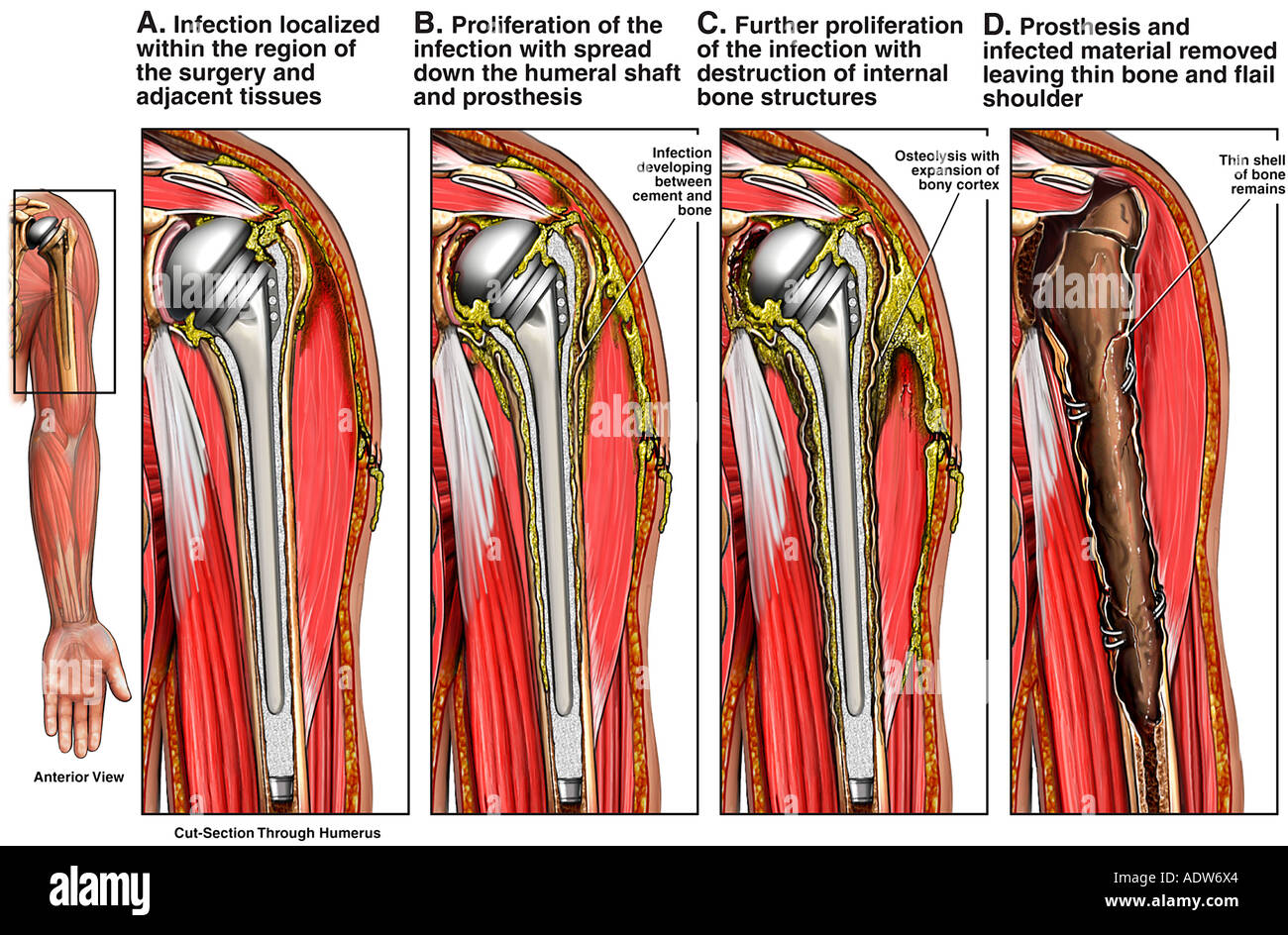 Possible Post-operative Complications of a Total Shoulder Replacement - Stock Image