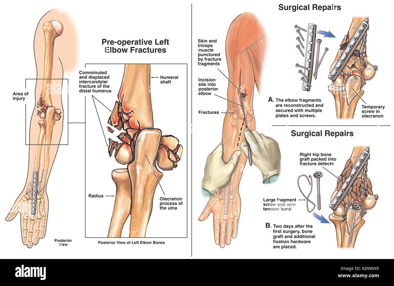 Left Elbow Anatomy Images - human body anatomy