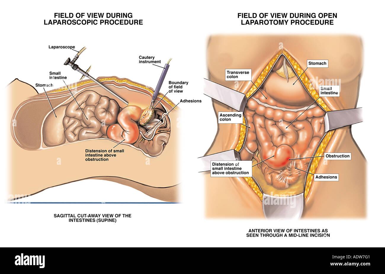 Laparoscopy vs. Open Laparotomy Stock Photo