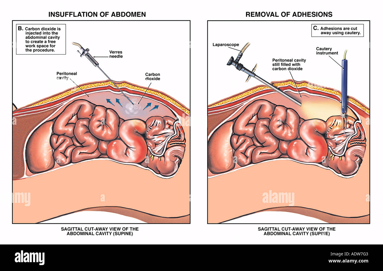 Laparoscopic Insufflation of the Abdomen with Removal of Adhesions Stock Photo