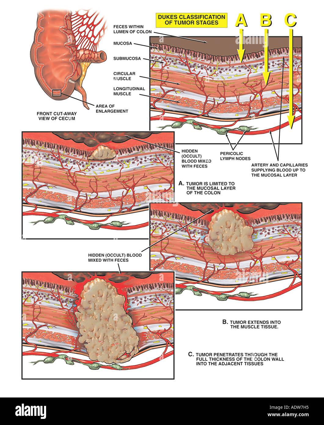 Progression of Colon Cancer - Stock Image