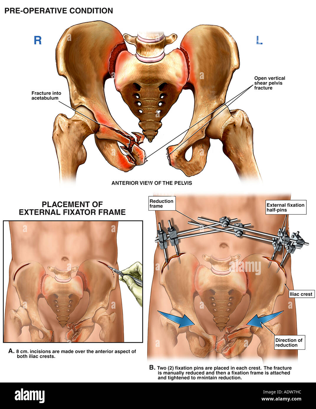 Surgical Fixation Of Crush Injuries To The Pelvis Stock Photo