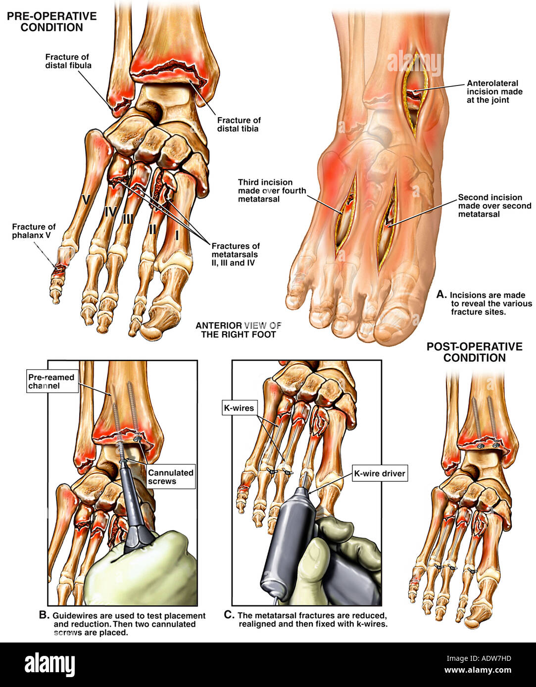 Foot Crush Fractures - Stock Image