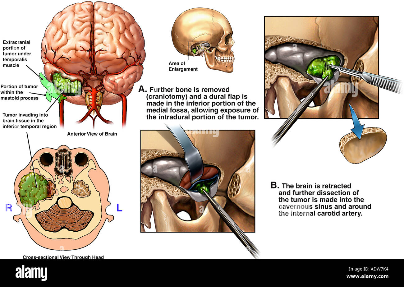 Intracranial Tumor Stock Photos & Intracranial Tumor Stock Images ...