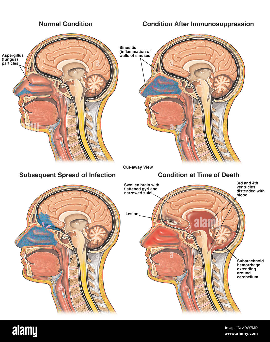 Spread of Sinus Infection into the Brain, Resulting in Brain Edema ...