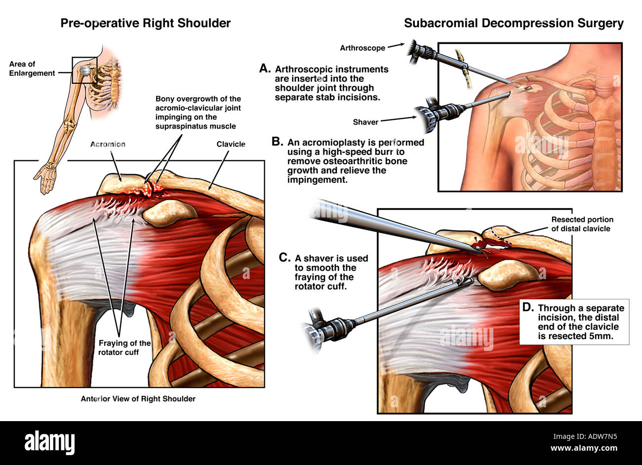 Shoulder Impingement Injury with Arthroscopic Surgery Stock Photo ...