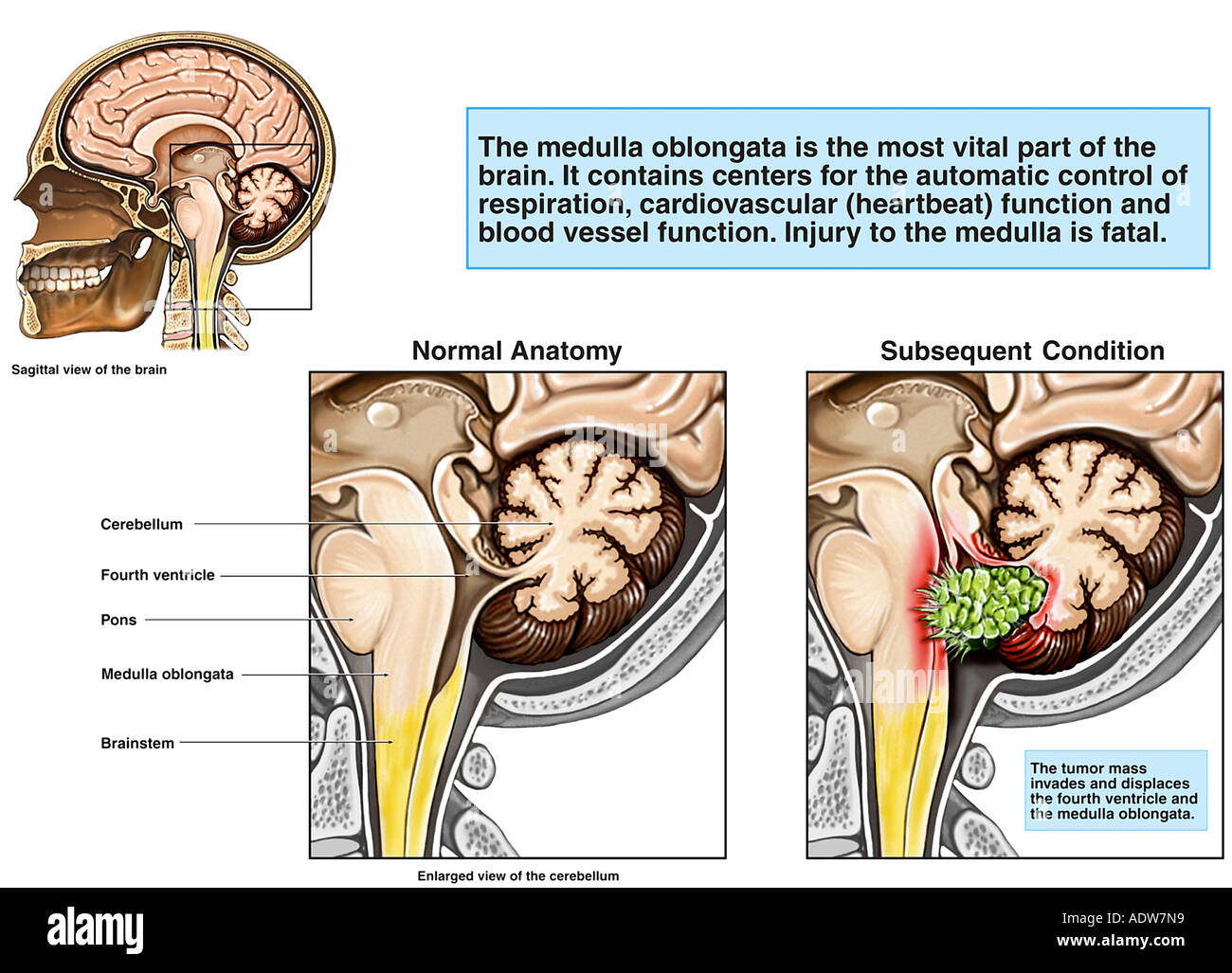 Invasive Tumor of the Brainstem - Stock Image