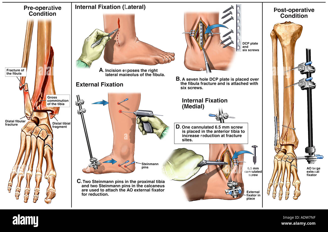 Right Ankle Fractures with Subsequent Surgical Fixation and Placement of an External Fixator - Stock Image