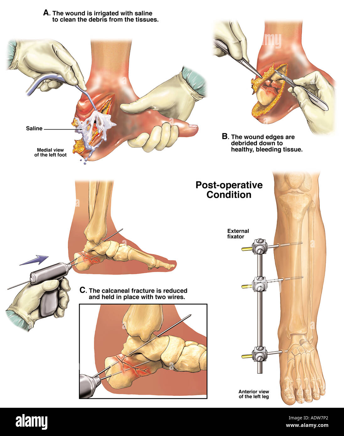 Initial Fixation of the Foot with Placement of External Fixator - Stock Image