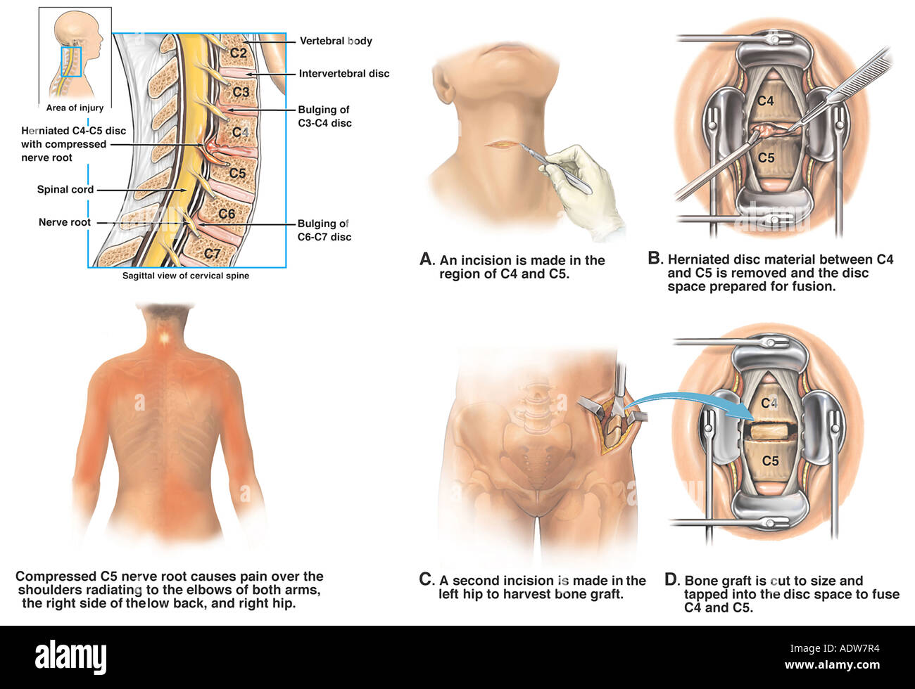 C3 4 C4 5 Cervical Spine Injuries with Surgical Discectomy and ...