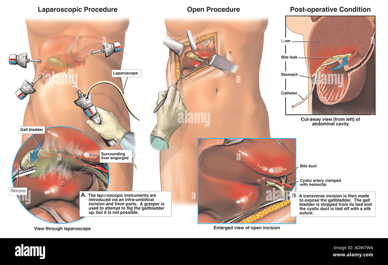 Gallbladder Operation Stock Photos & Gallbladder Operation Stock ...